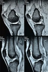 Symptome Arthose Knie